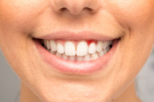 Woman with bright red gums smiling