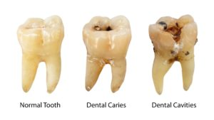 Image of decayed teeth at cosmetic dentist in Williamstown